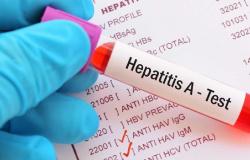 Casos de hepatite A mais que dobram entre homens de 20 a 39 anos