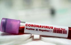 Marcelândia: Seis casos de covid-19 foram confirmados nesta segunda-feira (01)