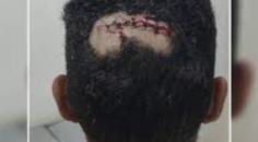 briga generalizada deixa homens feridos a facadas e garrafadas em Cerejeiras
