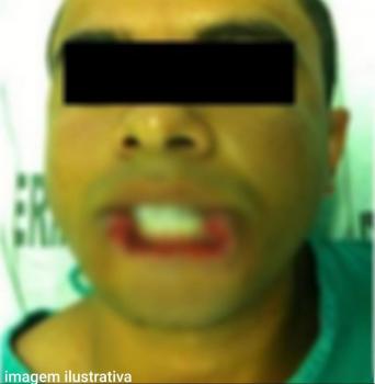 Jovem tem lábios arrancados após discussão com esposa e passa por cirurgia