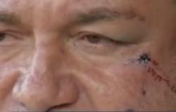 Empresário é agredido por ladrões ao reagir a assalto em borracharia em MT