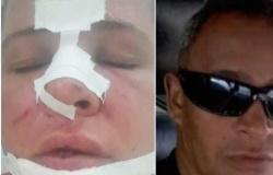 Mulher é espancada pelo marido na frente da filha e enteados e tem nariz quebrado: 'Não consegui me defender'