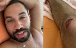 Gil do Vigor sofre acidente de bicicleta nos EUA e quase desmaia