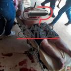 hauahuahauhauhauahhauhauahuahuahauhuPor fofoca! Homem sofre tentativa de homicídio a golpes de facão