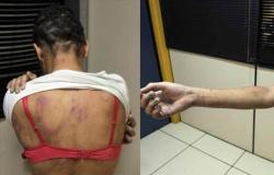 ADOLESCENTE IMPEDE NAMORADO DE INGERIR BEBIDA ALCOÓLICA E ACABA SENDO AGREDIDA