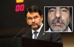 Ministério Público denuncia deputado estadual por agredir e ameaçar jornalista