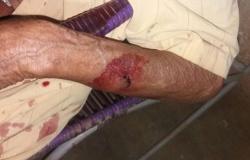 Idoso é agredido durante assalto em Apiacás, suspeito detido