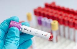 Nos 6 municípios da região de Alta Floresta, 140 pessoas tem o vírus da AIDS