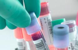 Alta Floresta registra 3ª morte por Coronavírus, confirma secretaria de Saúde