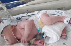 Após entrar na Justiça, mãe consegue cirurgia para bebê que nasceu com má formação em MT