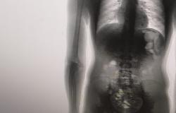 Preso é flagrado com oito celulares, carregador e chips dentro do corpo