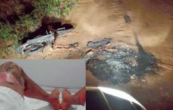 APIACÁS: Moto pega fogo e motoqueiro fica queimado em acidente com fio de alta tensão