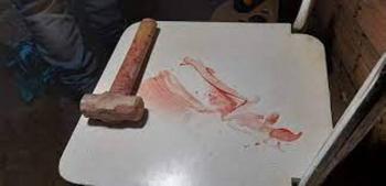 Mulher atacada com marreta tem morte cerebral; PJC caça assassino