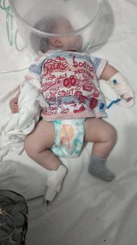 Bebê de 2 meses que teve 90% do pulmão comprometido não resiste à Covid-19 e morre em Cuiabá