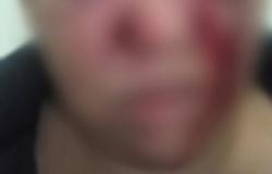Alta Floresta: Mulher é espancada após negar sexo com namorado bêbado